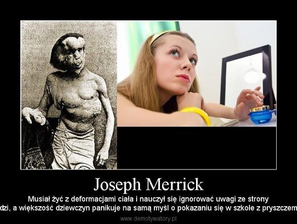 Joseph Merrick – Musiał żyć z deformacjami ciała i nauczył się ignorować uwagi ze stronyludzi, a większość dziewczyn panikuje na samą myśl o pokazaniu się w szkole z pryszczem...