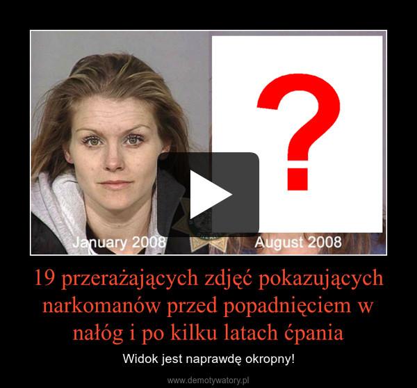 19 przerażających zdjęć pokazujących narkomanów przed popadnięciem w nałóg i po kilku latach ćpania – Widok jest naprawdę okropny!