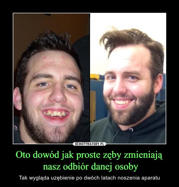 Oto dowód jak proste zęby zmieniają nasz odbiór danej osoby – Tak wygląda uzębienie po dwóch latach noszenia aparatu