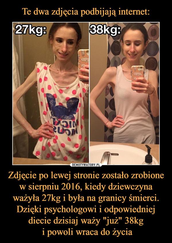 """Zdjęcie po lewej stronie zostało zrobione w sierpniu 2016, kiedy dziewczyna ważyła 27kg i była na granicy śmierci. Dzięki psychologowi i odpowiedniej diecie dzisiaj waży """"już"""" 38kg i powoli wraca do życia –"""