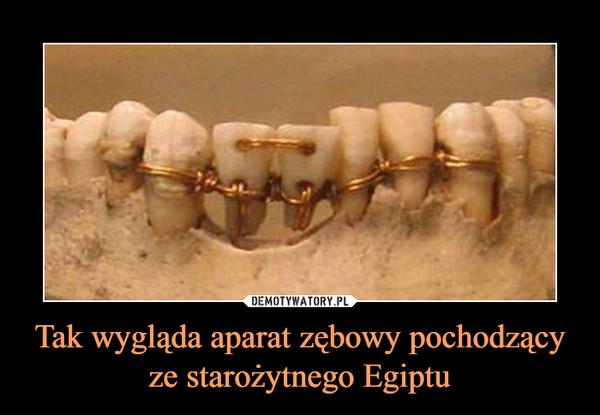 Tak wygląda aparat zębowy pochodzący ze starożytnego Egiptu –