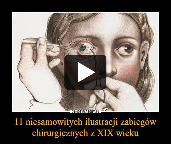 11 niesamowitych ilustracji zabiegów chirurgicznych z XIX wieku –