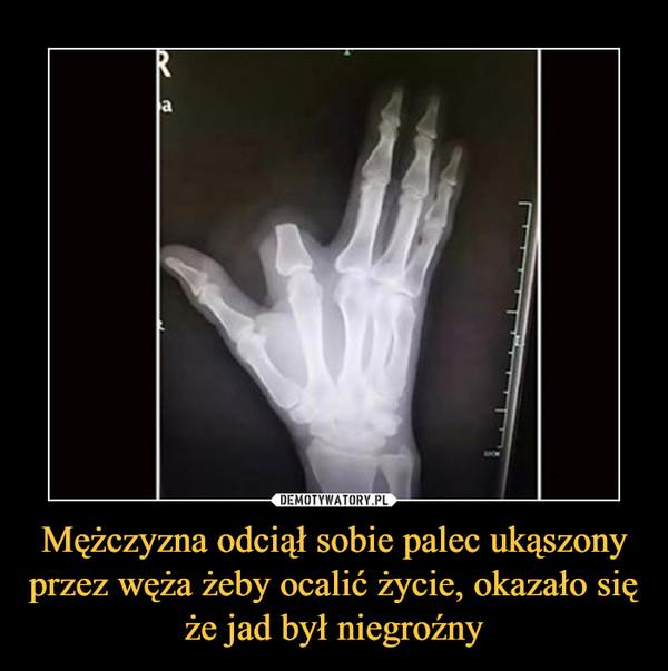 Mężczyzna odciął sobie palec ukąszony przez węża żeby ocalić życie, okazało się że jad był niegroźny –