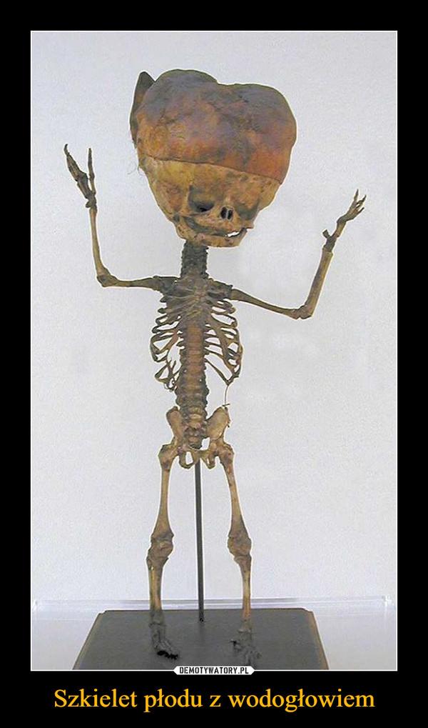 Szkielet płodu z wodogłowiem –