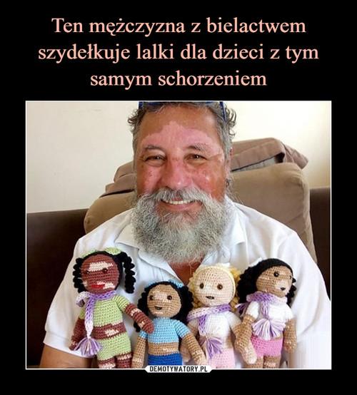 Ten mężczyzna z bielactwem szydełkuje lalki dla dzieci z tym samym schorzeniem