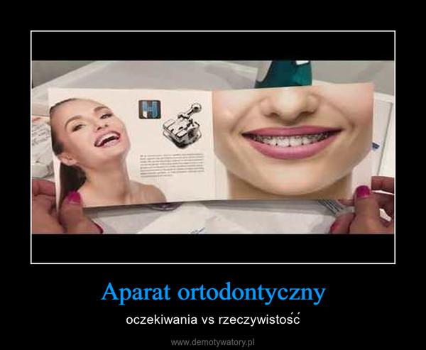 Aparat ortodontyczny – oczekiwania vs rzeczywistość