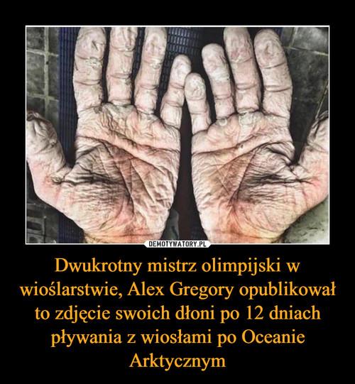 Dwukrotny mistrz olimpijski w wioślarstwie, Alex Gregory opublikował to zdjęcie swoich dłoni po 12 dniach pływania z wiosłami po Oceanie Arktycznym