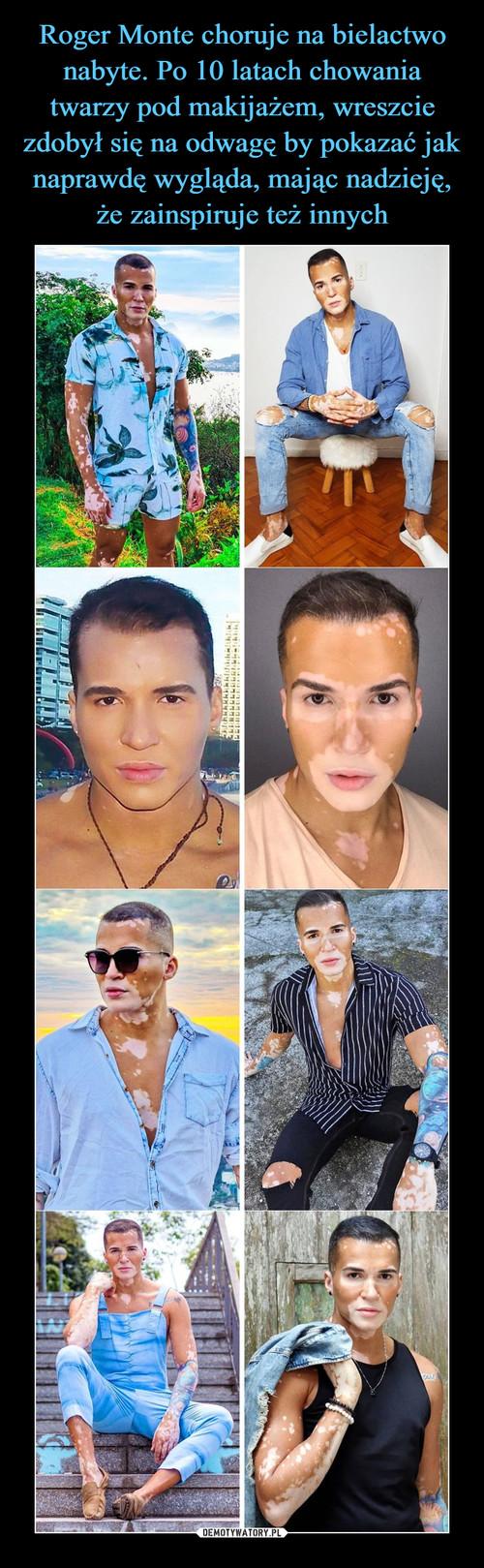 Roger Monte choruje na bielactwo nabyte. Po 10 latach chowania twarzy pod makijażem, wreszcie zdobył się na odwagę by pokazać jak naprawdę wygląda, mając nadzieję, że zainspiruje też innych